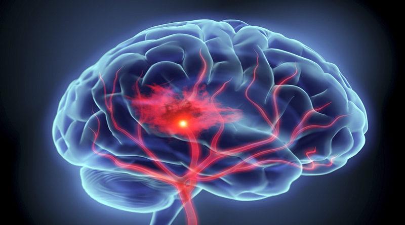 Riscos De Acidente Vascular Cerebral